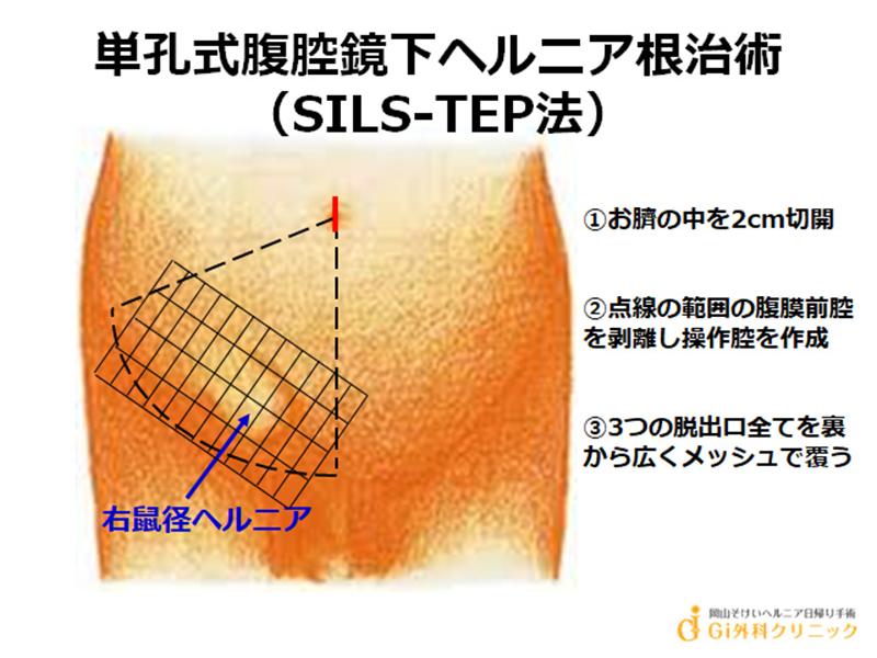 単孔式腹腔鏡下ヘルニア根治術(SILS-TEP法)