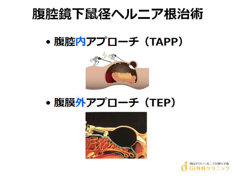 腹腔鏡下鼠径ヘルニア根治術