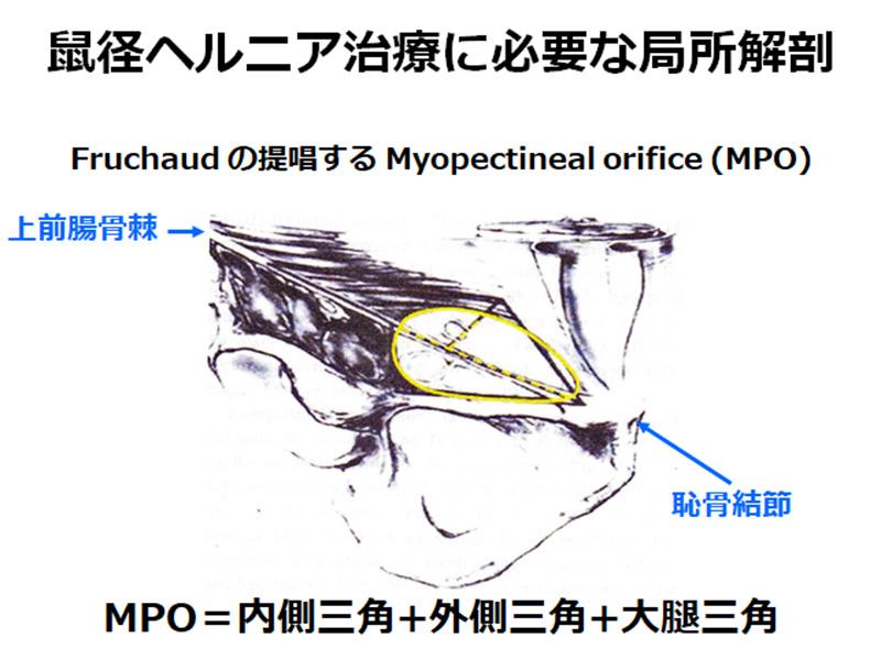 鼠径ヘルニア治療に必要な局所解剖