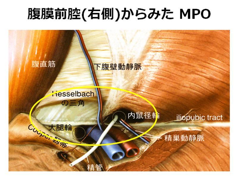腹膜前腔(右側)からみたMPO