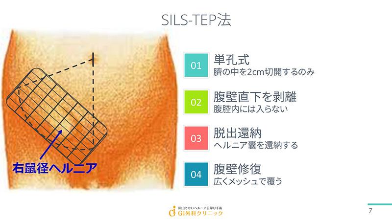 SILS-TEP法