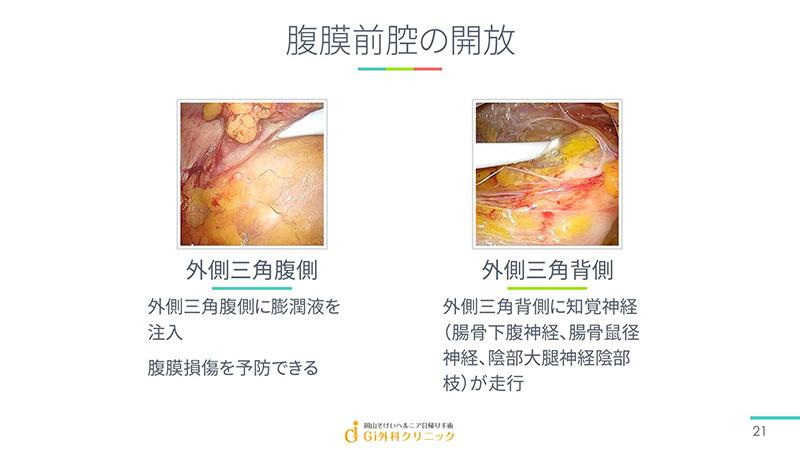 腹膜前腔の開放