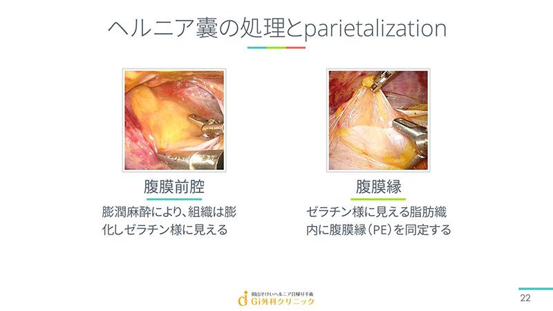 ヘルニア囊の処理とparietalization