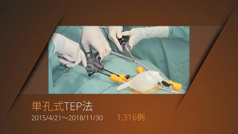単孔式TEP法 手術件数1,316例