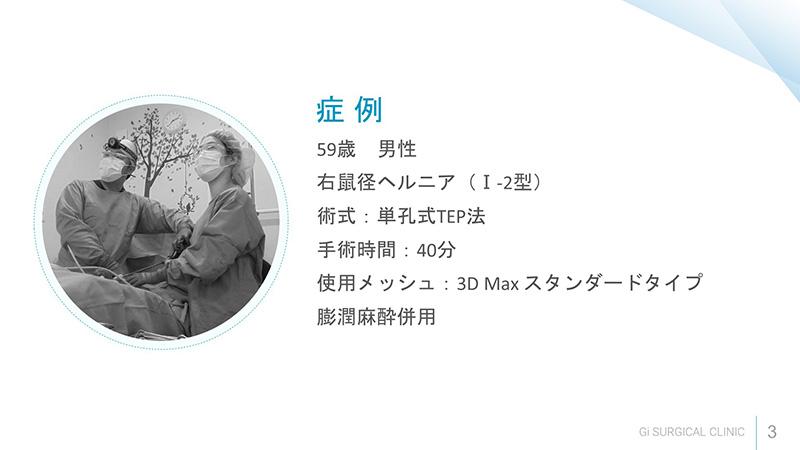 症例 59歳男性右鼠径ヘルニア(Ⅰ-2型)
